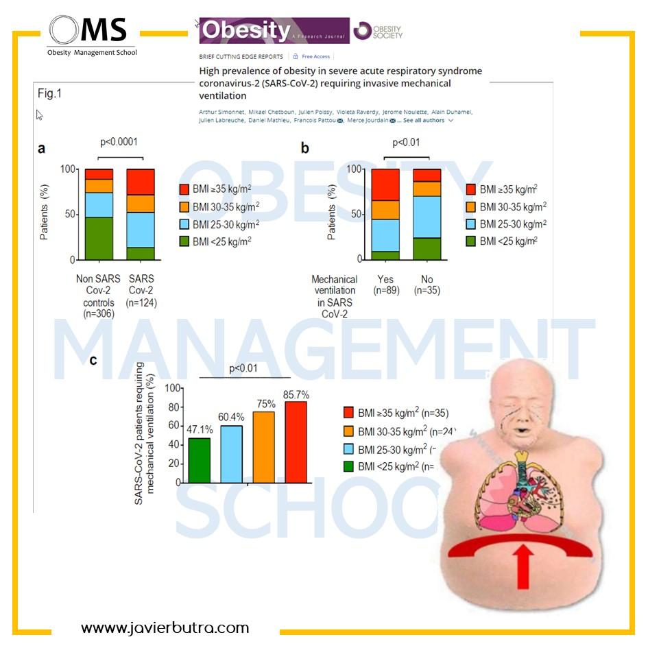 Obesidad y COVID19