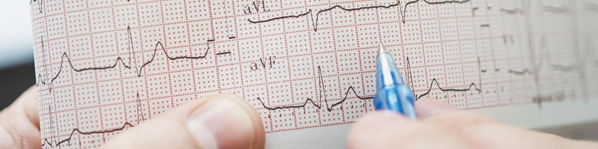 Curso de Electrocardiografía Nivel 1